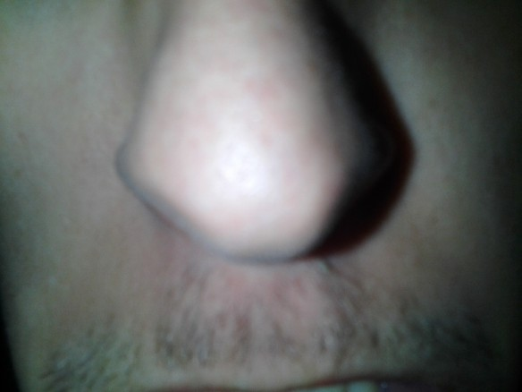 Selfie #50: Nose n stash (March 14)