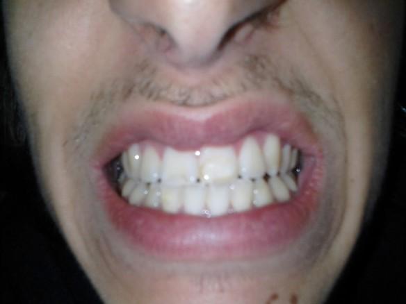 Selfie #51: Teeth (March 14)